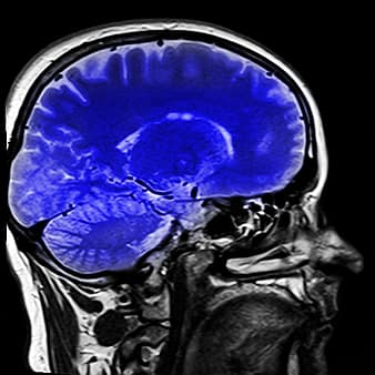 Neurofeedback basado en imagen por resonancia magnética funcional